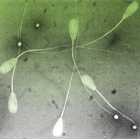 Для подвижности спермы