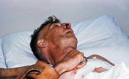 m250070-patient_infected_with_rabies-spl.jpg