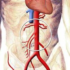brjushnaja-aorta.jpg